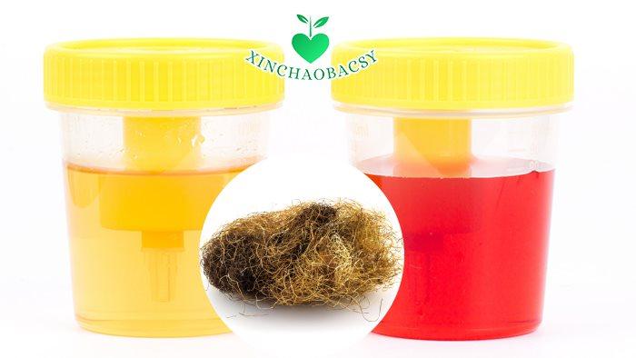 Râu ngô khô được dùng chữa chứng xuất huyết, tiểu ra máu