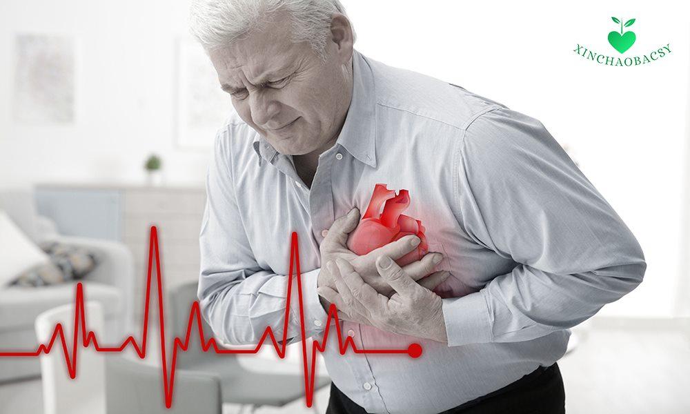 Hội chứng mạch vành cấp và những cảnh báo từ trái tim