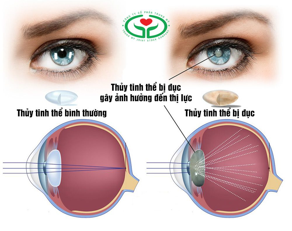 Bệnh cướm đá ở mắt là tình trạng thủy tinh thể bị mờ đục gây suy giảm thị lực