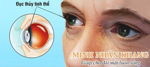 Người bệnh đục thủy tinh thể nên dùng viên bổ mắt để chống lão hóa