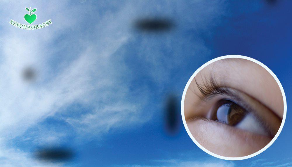 Mắt có chấm đen – 5 nguyên nhân thường gặp nhất