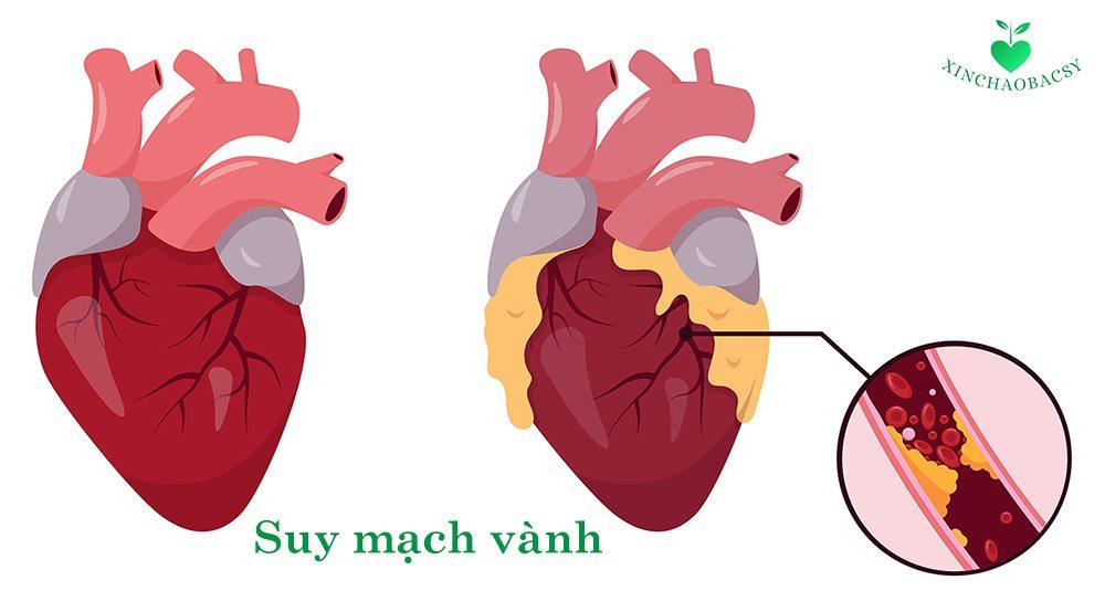 Suy mạch vành – Bệnh tim nguy hiểm không thể chủ quan