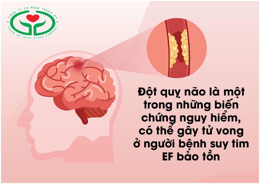 Suy tim ef bảo tồn gây biến chứng đột quỵ não