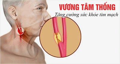 Xơ vữa động mạch cảnh – Thông tin bệnh không thể bỏ qua